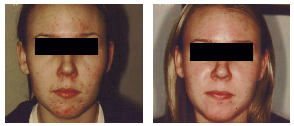 Acne-before-after-2