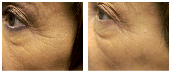 Wrinkle-Photofacial-before-after-2