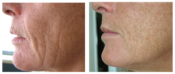 Wrinkle-Photofacial-before-after-3