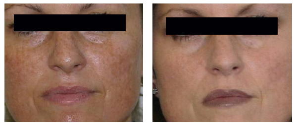 Wrinkle-Photofacial-before-after-4