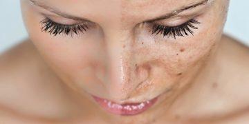 Skin Rejuvenation & Anti Aging