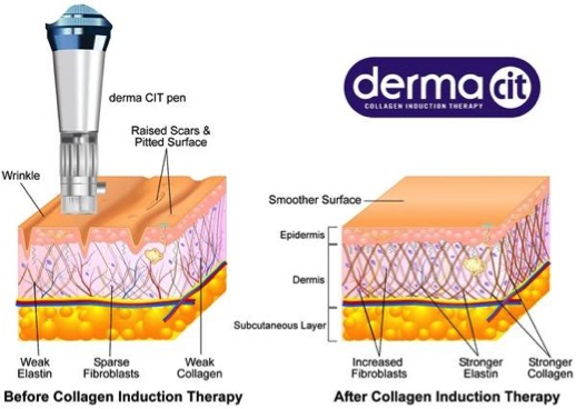 What is Collagen Induction Therapy (CIT) and what can it do for my skin?